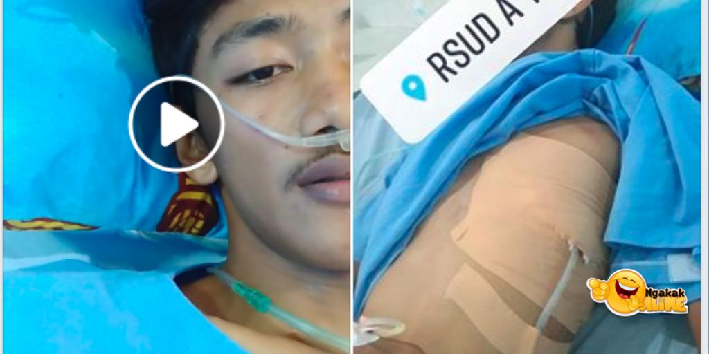 Paru-paru Dibor Karena Pneumothorax Spontan, Kondisi Apa Itu?